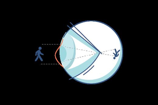 Illustration of an irregular cornea.